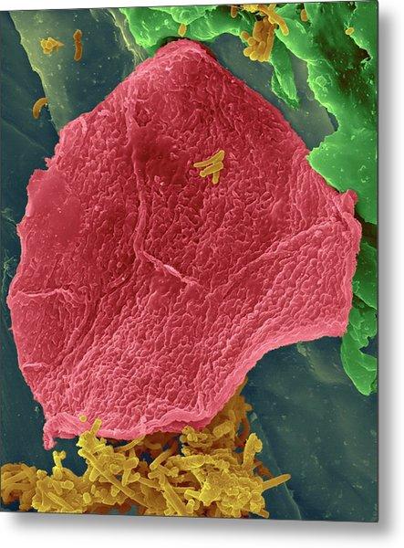 Used Wax Dental Floss Metal Print by Dennis Kunkel Microscopy/science Photo Library