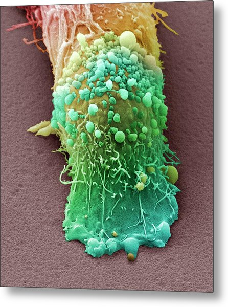 Skin Cancer Cell Metal Print by Steve Gschmeissner