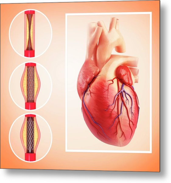 Angioplasty Metal Print by Pixologicstudio/science Photo Library