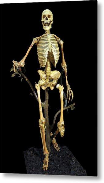Anatomical Skeleton Model Metal Print