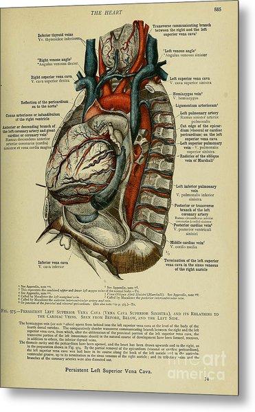 Anatomy Human Body Old Anatomical 76 Metal Print