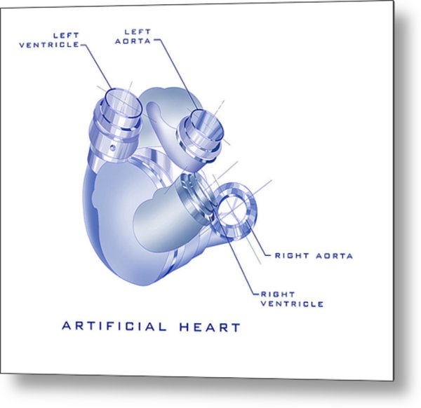 Artificial Heart Metal Print