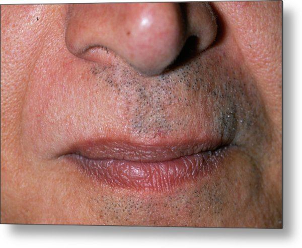 Baldness Metal Print by Dr P. Marazzi/science Photo Library