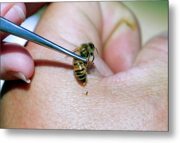 Bee Venom Therapy Metal Print