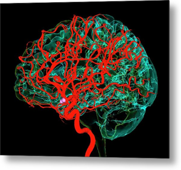 Blood Vessels Supplying The Brain Metal Print by K H Fung/science Photo Library