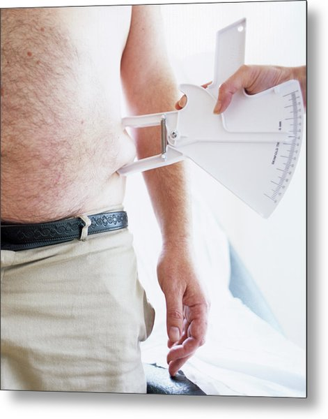 Body Fat Assessment Metal Print by Ian Hooton/science Photo Library