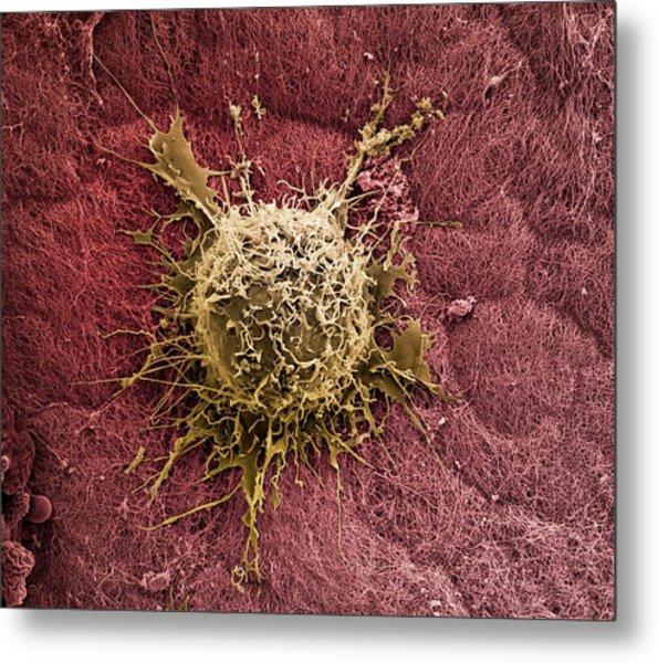 Bone Marrow Stem Cell On Cartilage Metal Print