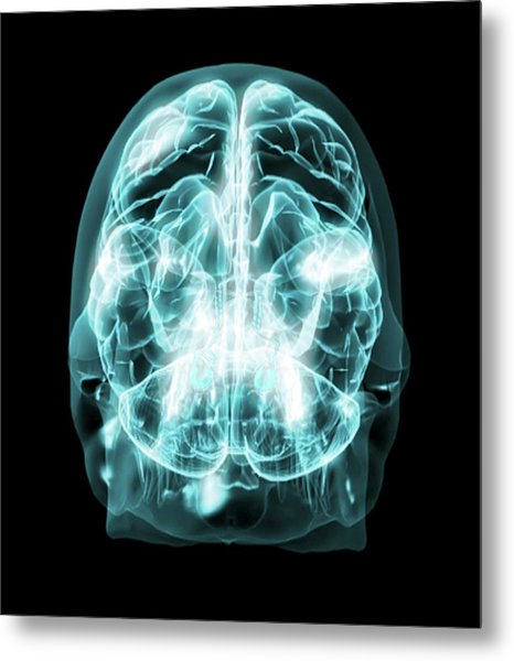 Brain Anatomy Metal Print by Thierry Berrod, Mona Lisa Production/ Science Photo Library