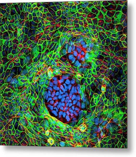 Cancer Cells Metal Print by