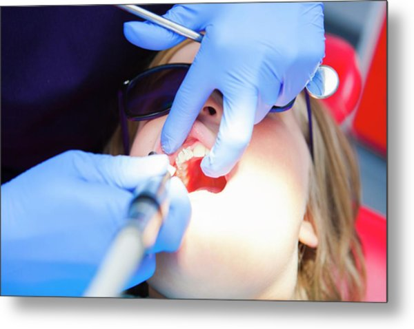 Child At Dentist's Metal Print by Lewis Houghton/science Photo Library