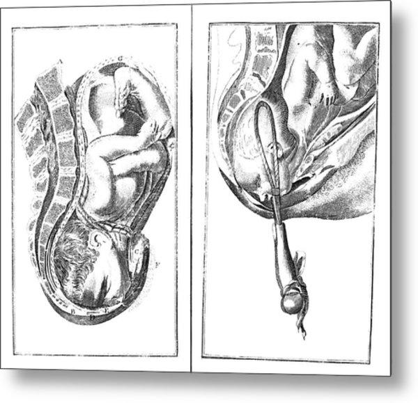 Childbirth Illustrations Metal Print