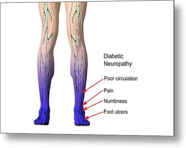 Diabetic Neuropathy Metal Print by Carol & Mike Werner