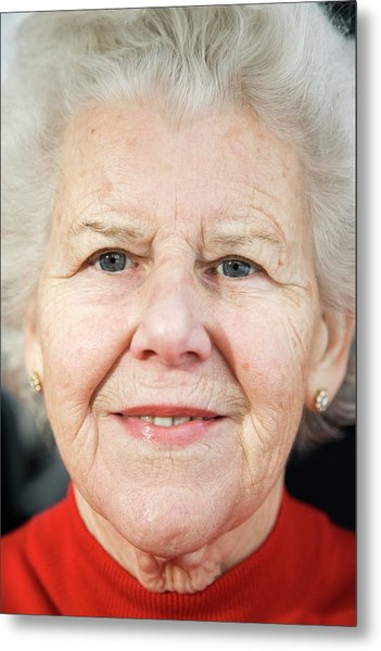 Elderly Woman Smiling Metal Print by Cristina Pedrazzini/science Photo Library