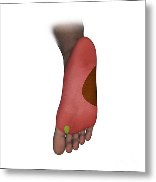 Foot Plantar Nerve Regions, Artwork Metal Print