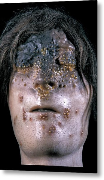 Glanders Infection Model Metal Print