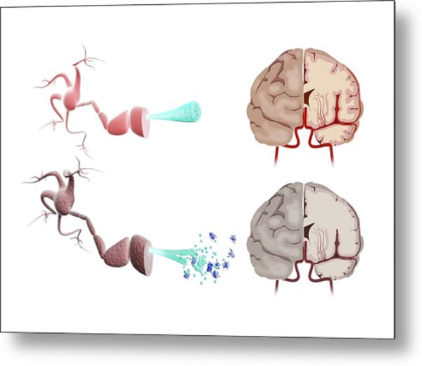 Healthy And Alzheimer's Brains Metal Print by Gunilla Elam