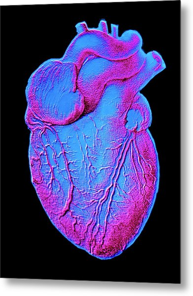 Heart Artwork Metal Print by Alain Pol, Ism/science Photo Library