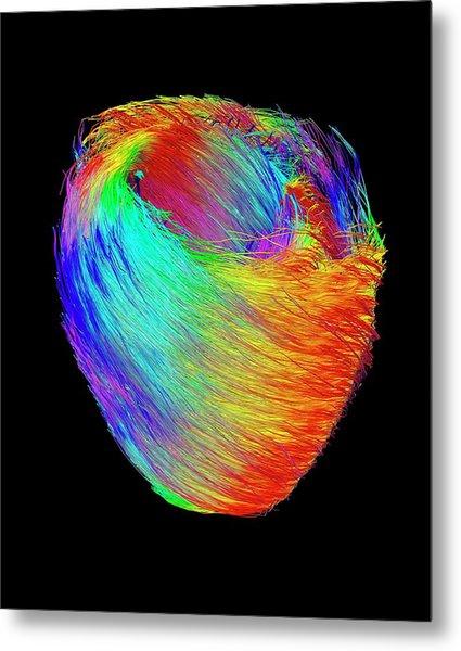 Heart Muscle Fibres Metal Print