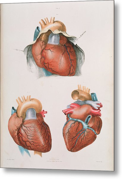 Heart Metal Print by Sheila Terry/science Photo Library