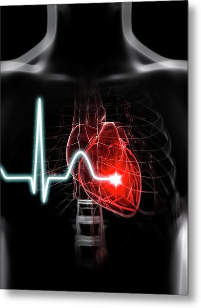 Heartbeat Metal Print by Sciepro/science Photo Library