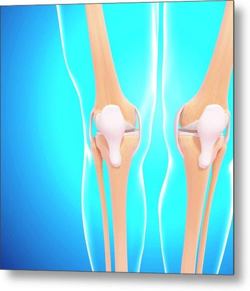 Human Knee Joints Metal Print by Pixologicstudio