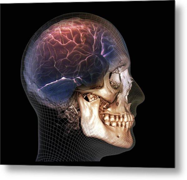 Human Skull And Brain Metal Print