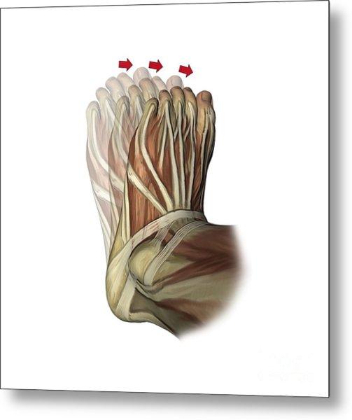 Inversion Of The Foot, Artwork Metal Print