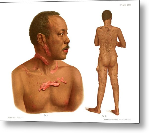 Keloids And Fibromas Metal Print by Us National Library Of Medicine/science Photo Library
