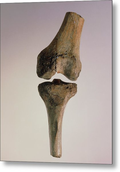 Knee Joint Of Australopithecus Afarensis Metal Print by John Reader/science Photo Library