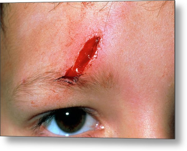 Laceration Above The Eye Of A 5 Year Old Boy Metal Print by Dr P. Marazzi/science Photo Library