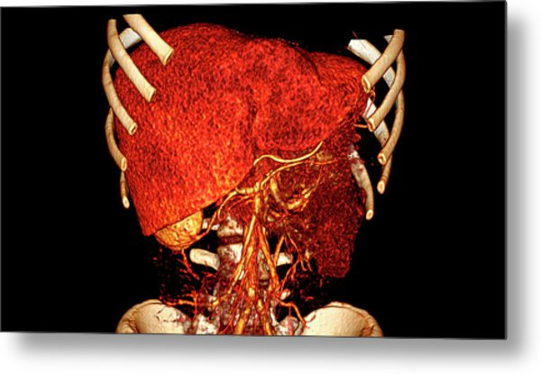 Liver Metal Print by Antoine Rosset/science Photo Library