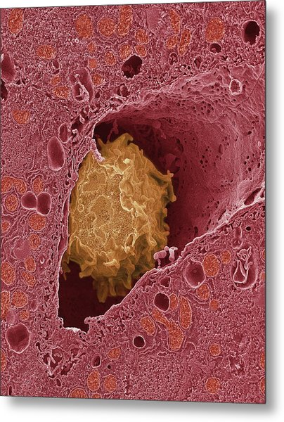 Liver Macrophage Cell Metal Print by Thomas Deerinck, Ncmir/science Photo Library