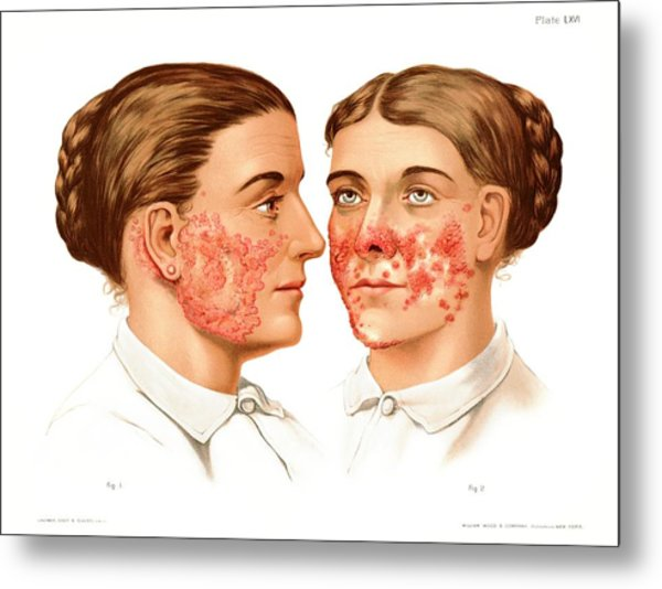 Lupus Erythematosus And Vulgaris Metal Print by Us National Library Of Medicine/science Photo Library
