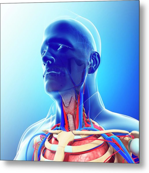 Male Neck Blood Vessels Metal Print by Pixologicstudio/science Photo Library