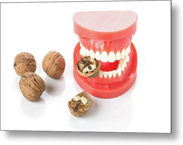 Model Of Human Jaw With Walnuts Metal Print