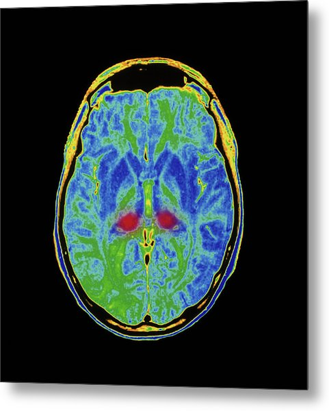 Mri Scan Of Human Brain Diseased With Cjd Metal Print by Simon Fraser/royal Victoria Infirmary, Newcastle Upon Tyne/science Photo Library