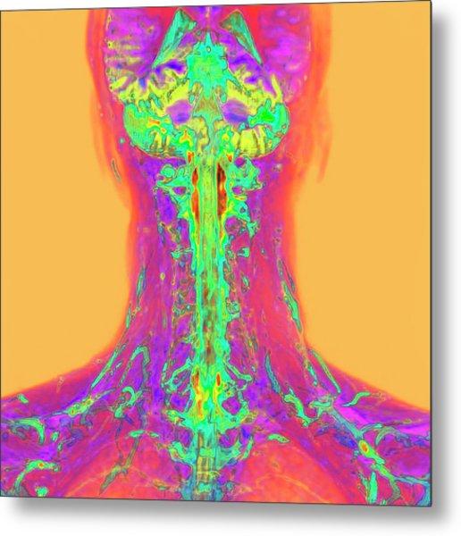 Neck And Brain Metal Print