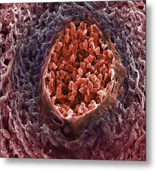 Ovarian Cancer Blood Vessel Metal Print by Steve Gschmeissner