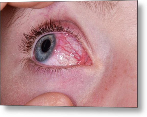 Phlyctenulosis Metal Print by Dr P. Marazzi/science Photo Library