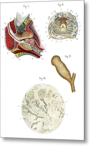 Prostate Anatomy Metal Print by Collection Abecasis
