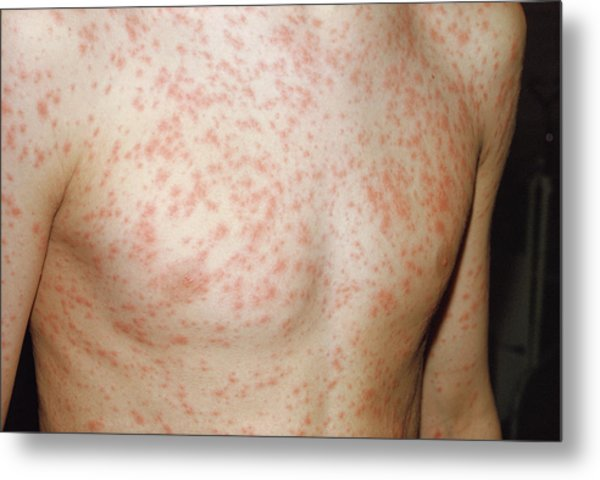 Rubella Rash Metal Print by Pr. Ph. Franceschini/cnri/science Photo Library