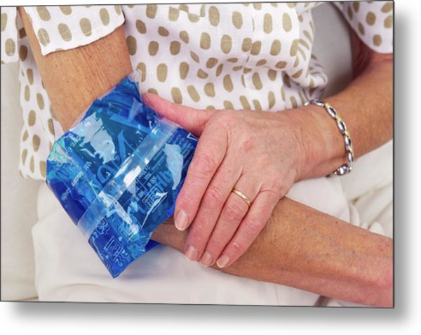 Sprained Elbow Metal Print by Lea Paterson/science Photo Library