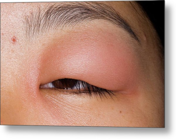 Swollen Eyelid After Insect Bite Metal Print by Dr P. Marazzi/science Photo Library