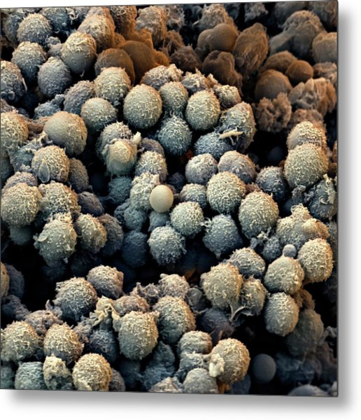 T-lymphocyte White Blood Cells Metal Print by Stefan Diller