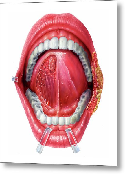 Underside Of The Tongue Metal Print by Bo Veisland/science Photo Library