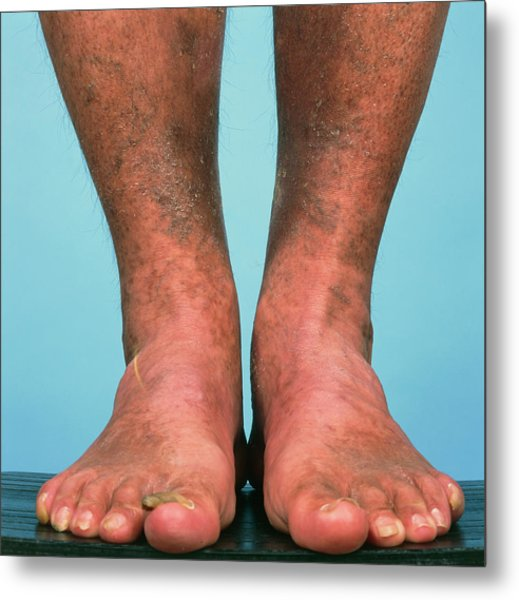 Varicose Vein Bruising Metal Print by Alex Bartel/science Photo Library