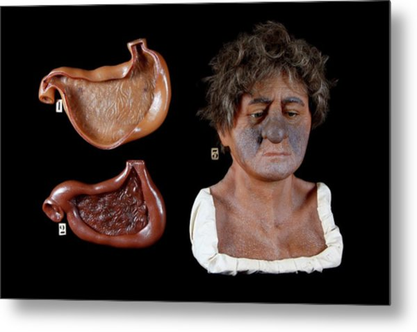 Wax Model Of The Effects Of Alcohol Metal Print