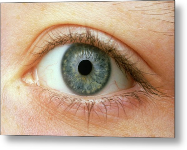 Woman's Right Eye Metal Print by Martin Dohrn/science Photo Library