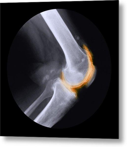 Arthritis Of The Knee, X-ray Metal Print by Cnri