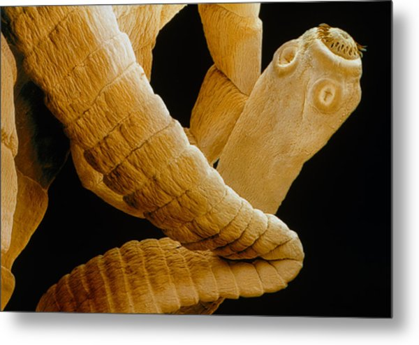 Coloured Sem Of A Tapeworm, Taenia Sp. Metal Print by Power And Syred